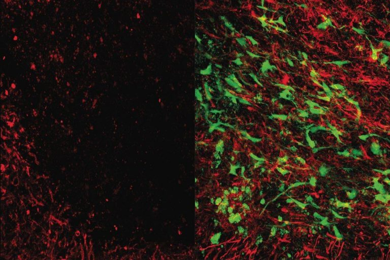 Microscope images show brain tissue that has been damaged by white matter stroke, on left, then repaired by the new glial cell therapy, right. Myelin (in red), is a substance that protects the connections between neurons and is lost due to white matter stroke. The glial cell therapy (in green) restores lost myelin and improves connections in the brain. (Image courtesy of UCLA Broad Stem Cell Research Center/Science Translational Medicine)