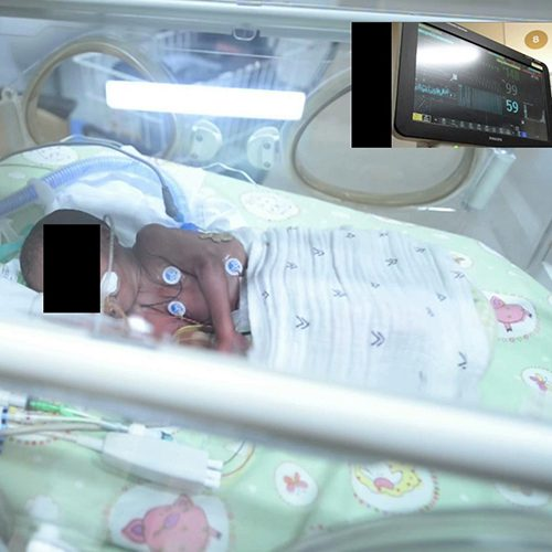 A baby in Flinders Medical Centre's intensive care neonatal unit, one of seven infants whose vital signs were remotely monitored in the study.