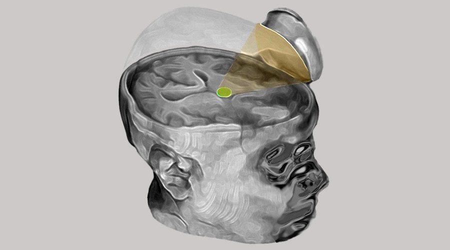 Ultrasound Stimulation – tsaolab.caltech.edu
