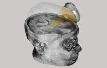 Slowing down dementia-related brain breakdown by using ultrasound