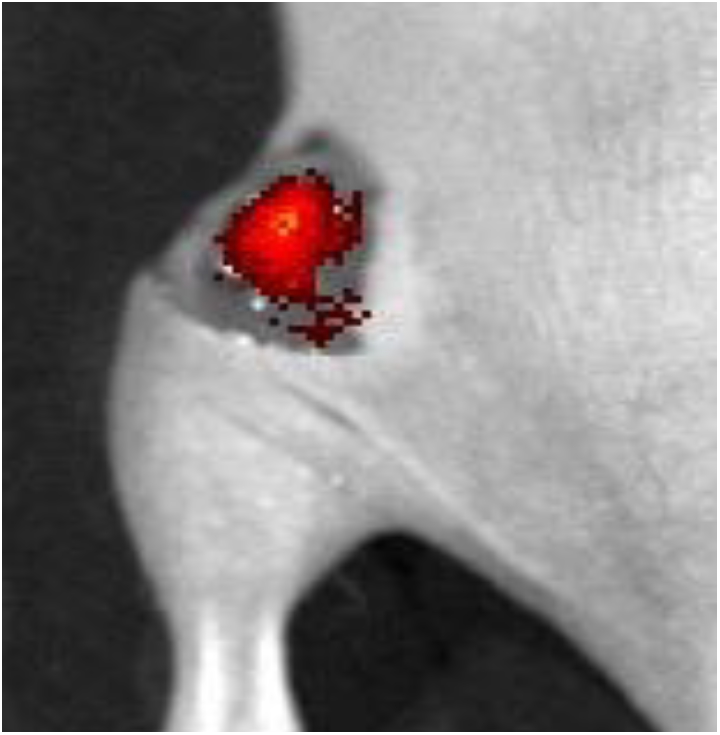 A fluorescent probe reveals cancerous tissue (red) 1 minute after being sprayed on a surgical site in a mouse. Credit: Adapted from ACS Sensors 2021, DOI: 10.1021/acssensors.1c01370