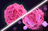 A new way to jump-start the immune system to attack tumors