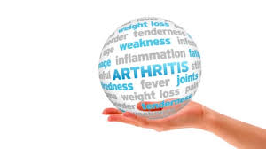 How to Exercise with Arthritis