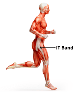"Do You Actually Know What and Where Your ""IT Band"" Is?"