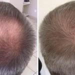 Les implants capillaires sont prélevés sur la couronne pour être ensuite replacés sur la zone dégarnie.