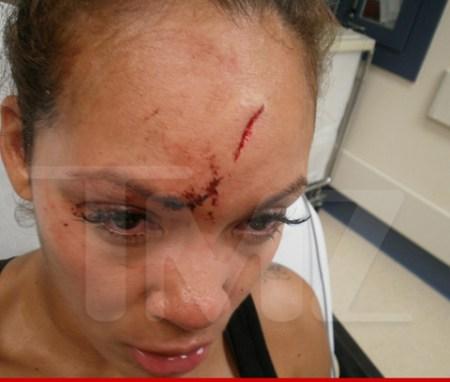 0617-evelyn-lozada-injuries-wm-1-480w