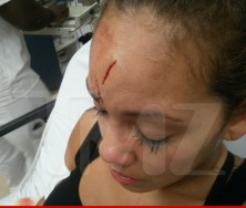 0617-evelyn-lozada-injuries-wm-2-480w