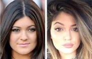 Kylie-Jenner-nose-job