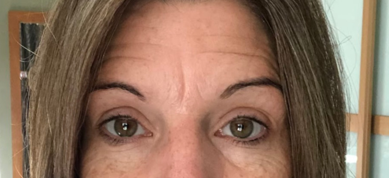 Before Microblading Eyebrows