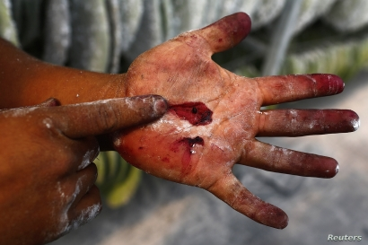 A man crushes a cochineal insect to show its red color, at a greenhouse used to cultivate cochineal insects in Huejotzingo,…