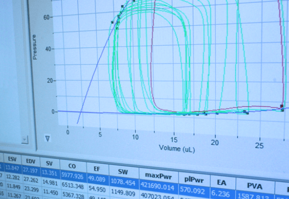 Best-Practices to Achieve Quality Pressure-Volume Loop Data in Rodents