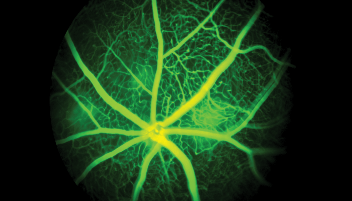 Optimizing Image-Guided Laser-Induced Choroidal Neovascularization in Mice