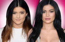 kylie-jenner-plastic-surgery-makeover-pp