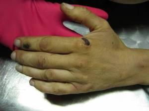 Tracce di torture sulle mani di Stefano Cucchi