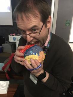 aneurin brain