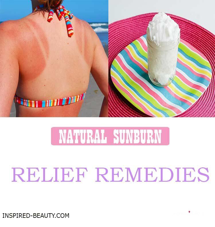 DIY Sunburn Relief