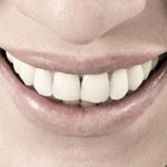 Zahnwunder Xylit: Natürliche Hilfe bei Zahnproblemen