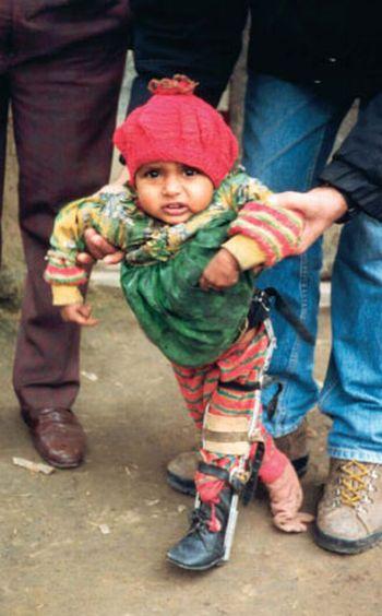 a polio child in uttar pradesh
