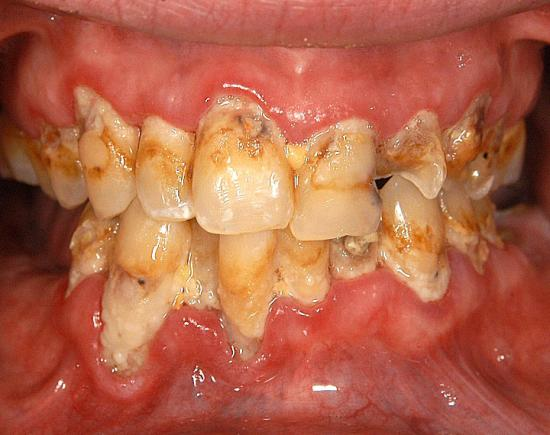 meth mouth 6 L8L6A 16638