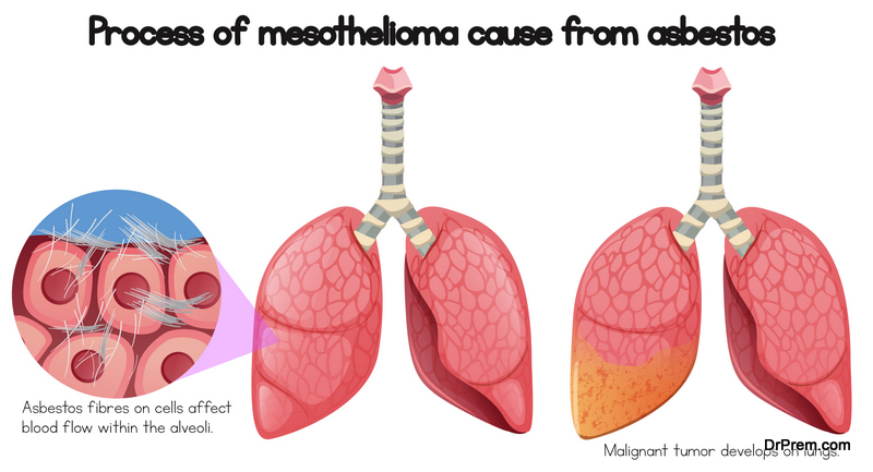Mesothelioma and it's Relation with Asbestos