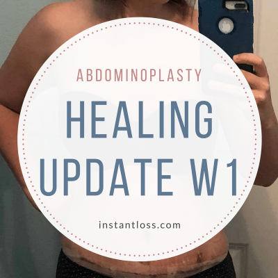 Abdominoplasty Healing Update- Week 1