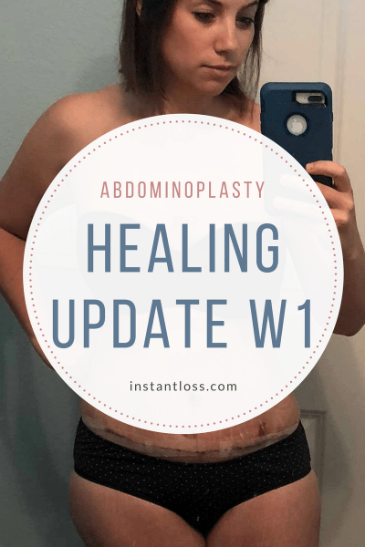 Abdominoplasty Healing Update W1