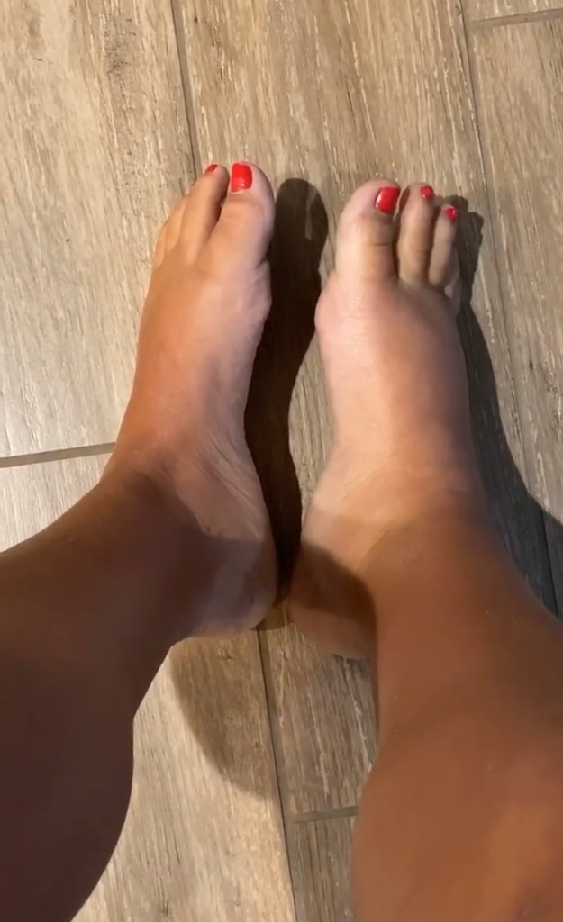 Swelling in my right leg and foot instantloss.com