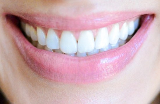 the best at-home teeth whitening kit- smiling