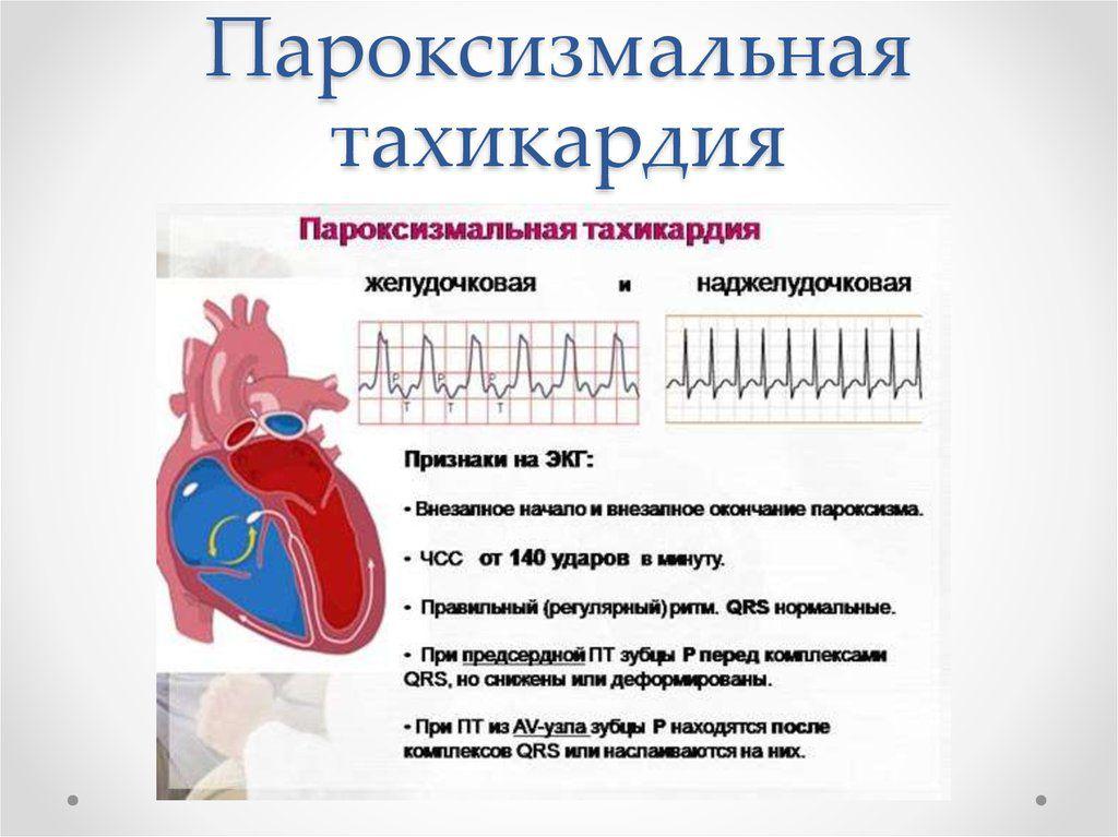 Пароксизмальды тахикардия