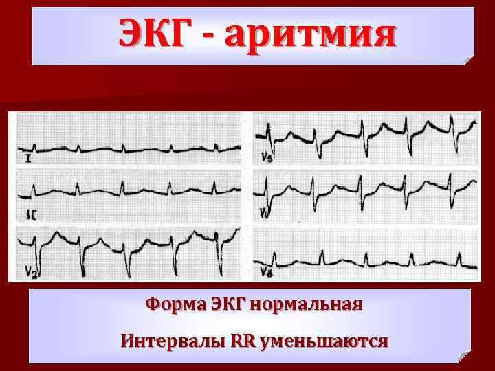 부정맥의 종류