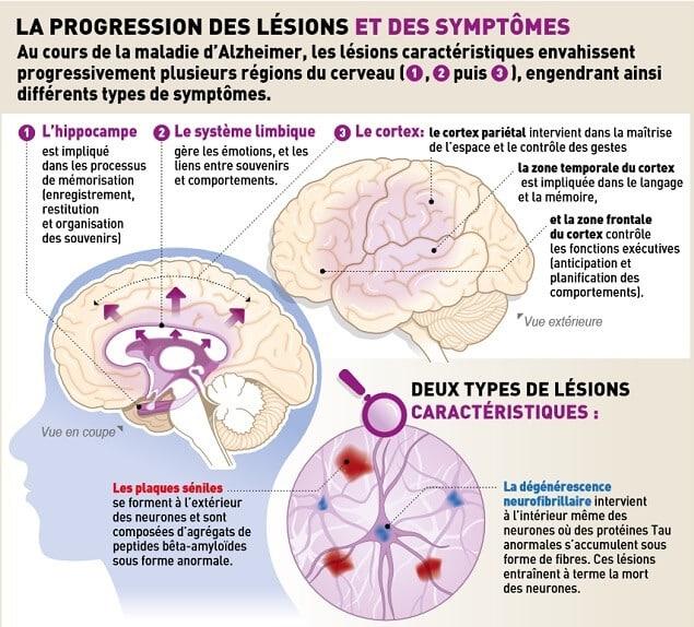 Comprendre la maladie d'Alzheimer : Symptômes causes et ...