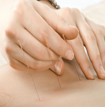 Therapy - Accupuncture