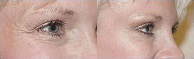 antes-despues botox