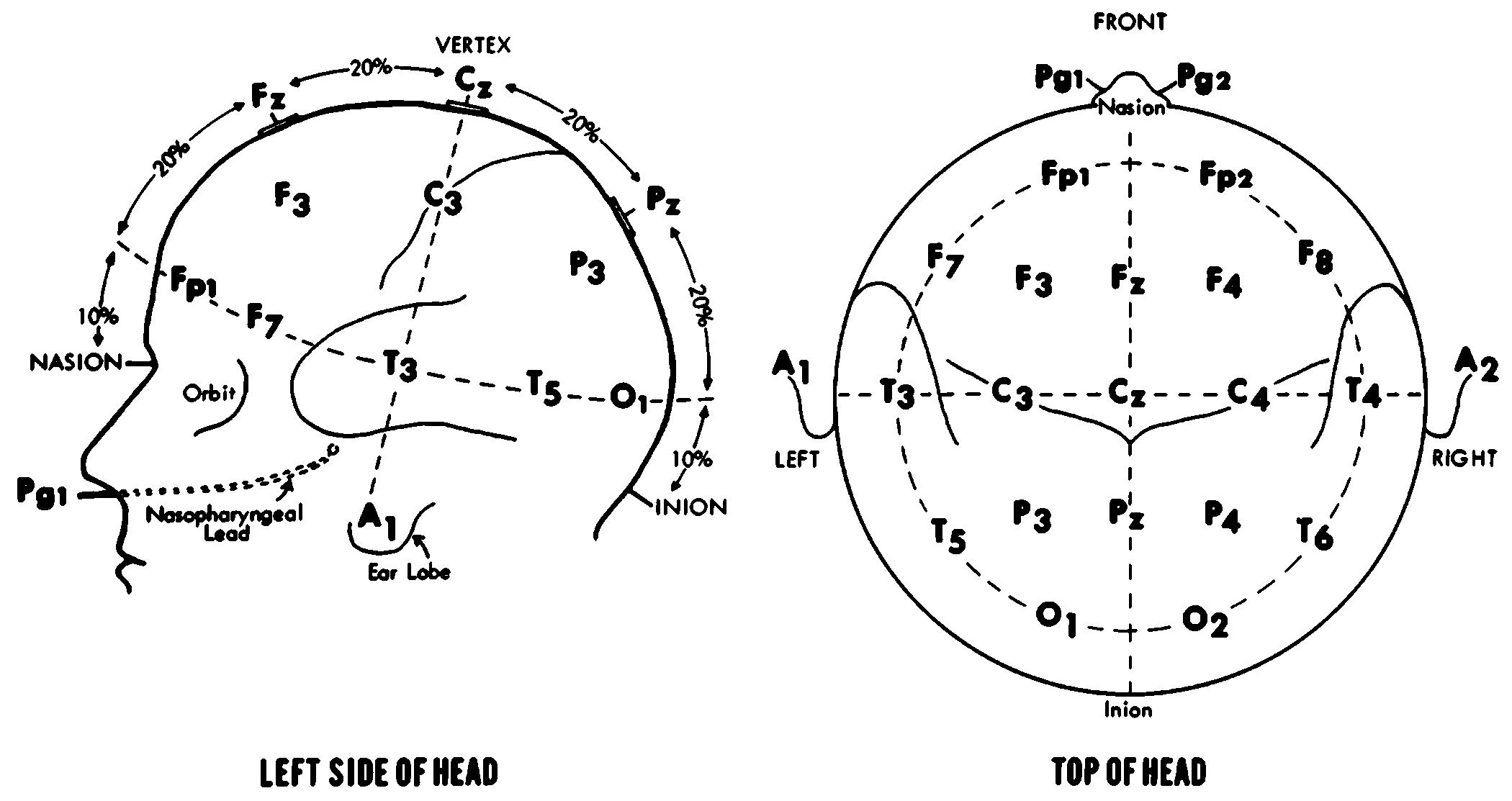 Electrode 10 20 System