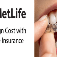 MetLife Dental Insurance Coverage Review and infos