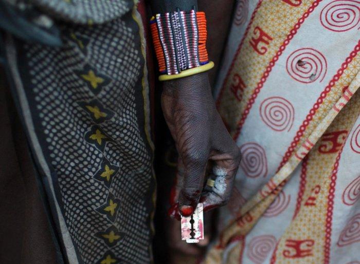 Female-circumcision-1-Guardian