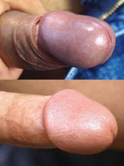 Dick uncircumcised sex with Trying My