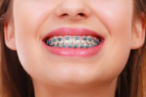 shutterstock_597959450_metal_braces_large