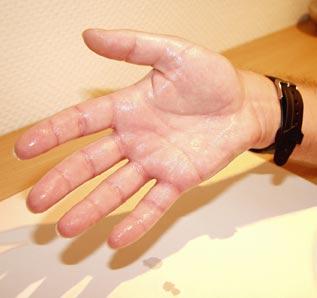 hiperhidrosis, manos sudadas