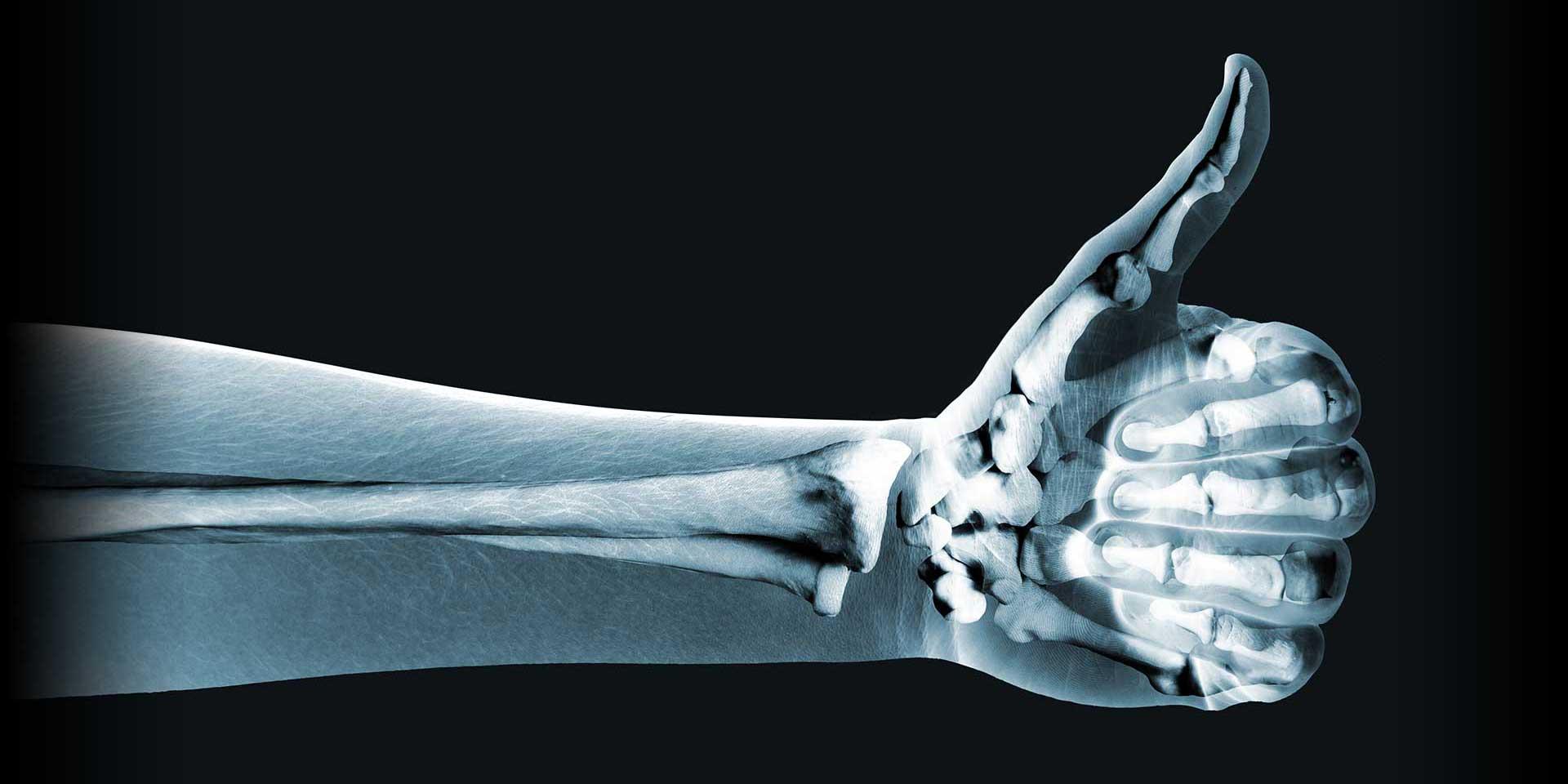 Xray Integrated Orthopedics