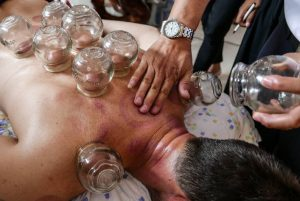 Cupping at Shaolin Temple