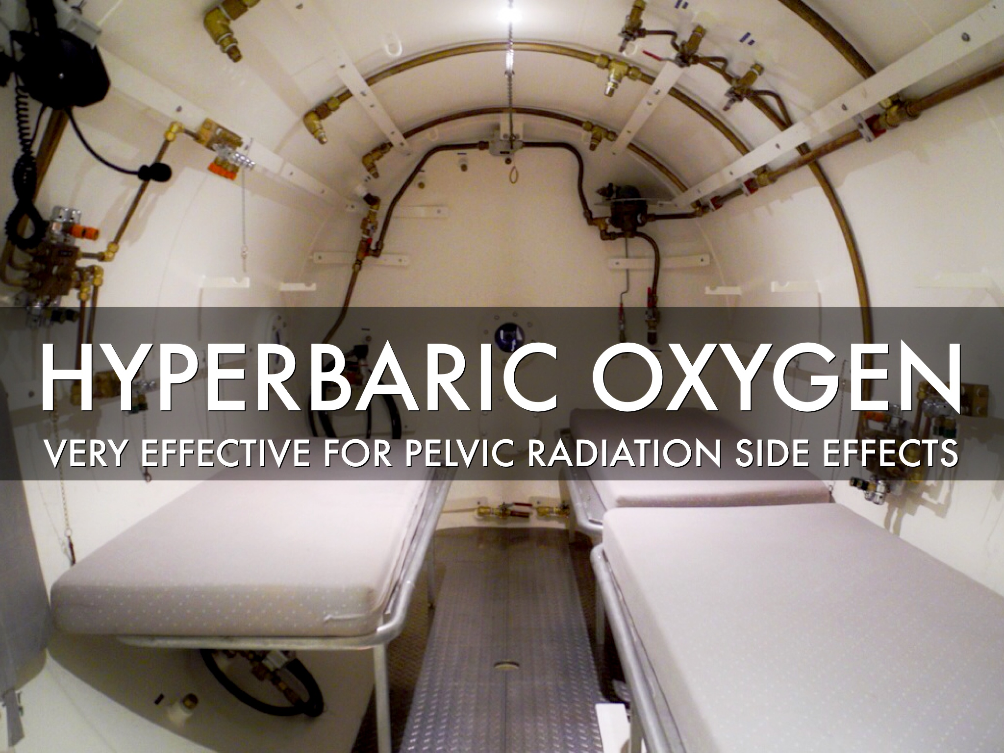 Hyperbaric Oxygen Therapy Reduces Chronic Radiation Side
