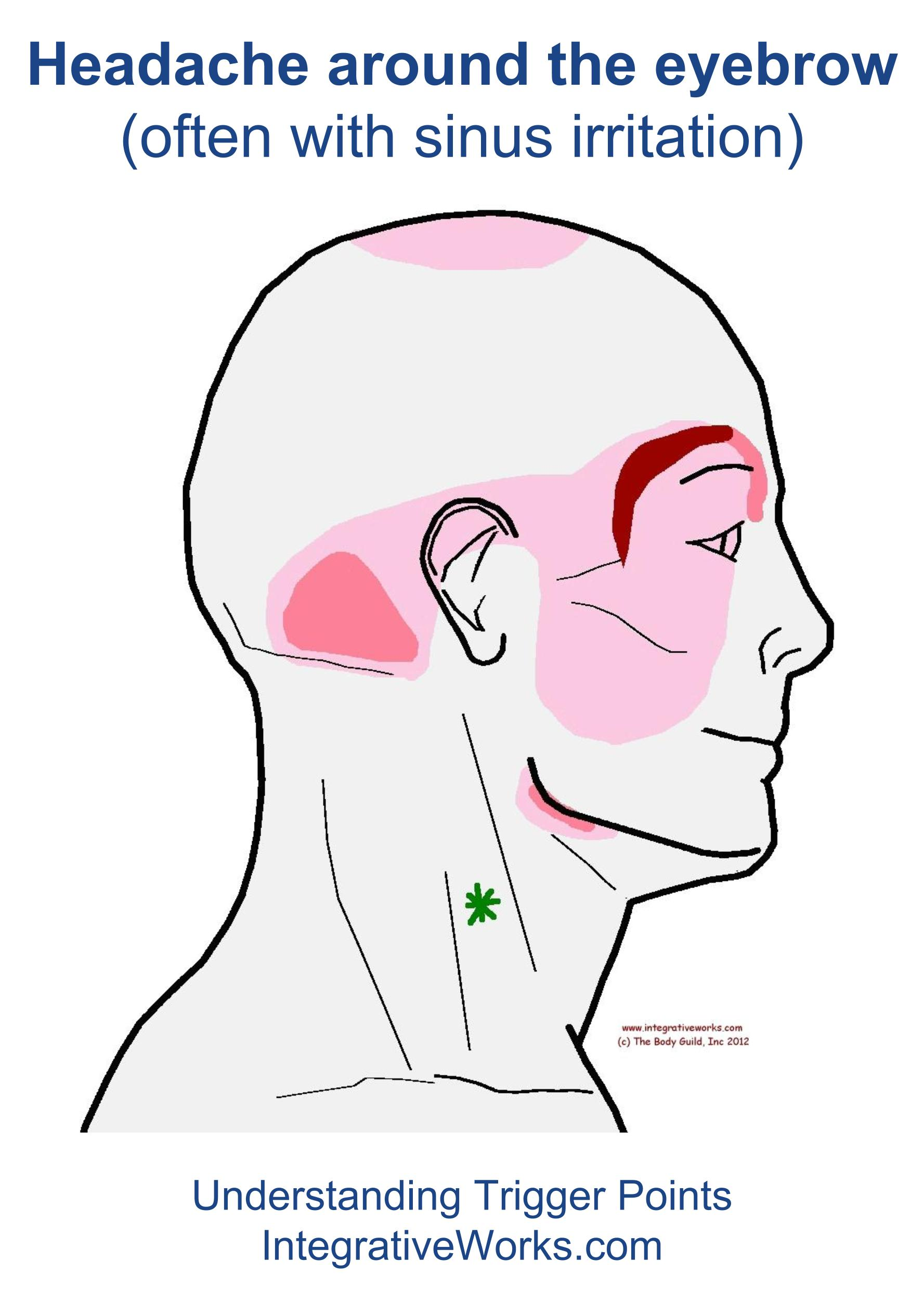 Headache Around The Eyebrow Integrative Works