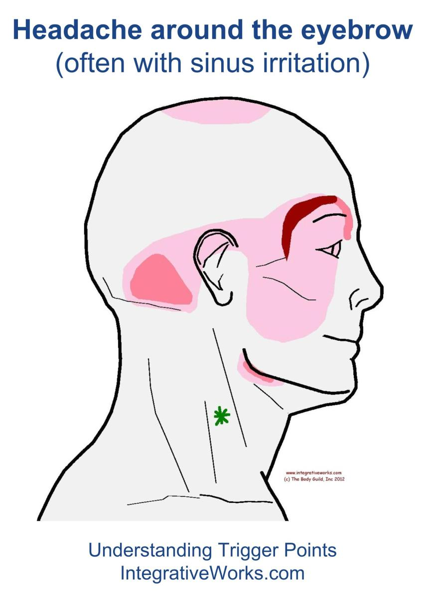 Understanding Trigger Points - Headache Around The Brow