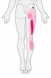 Referral pattern of the Gluteus Minimus