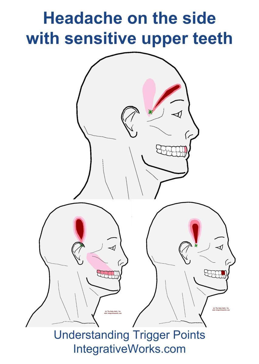 Understanding Trigger Points - Headache with sensitive upper teeth
