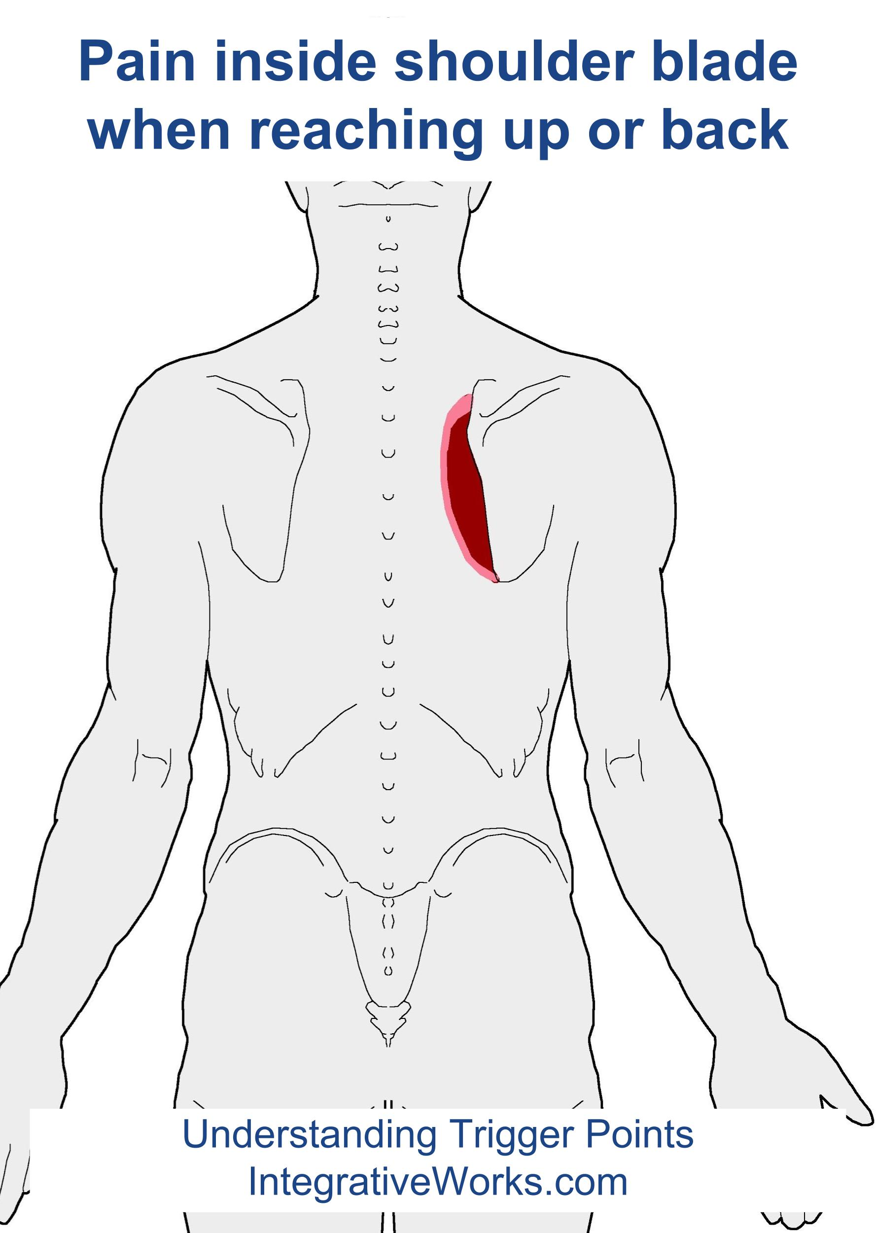 Trigger Points Pain When Reaching Up Or Back Integrative Works