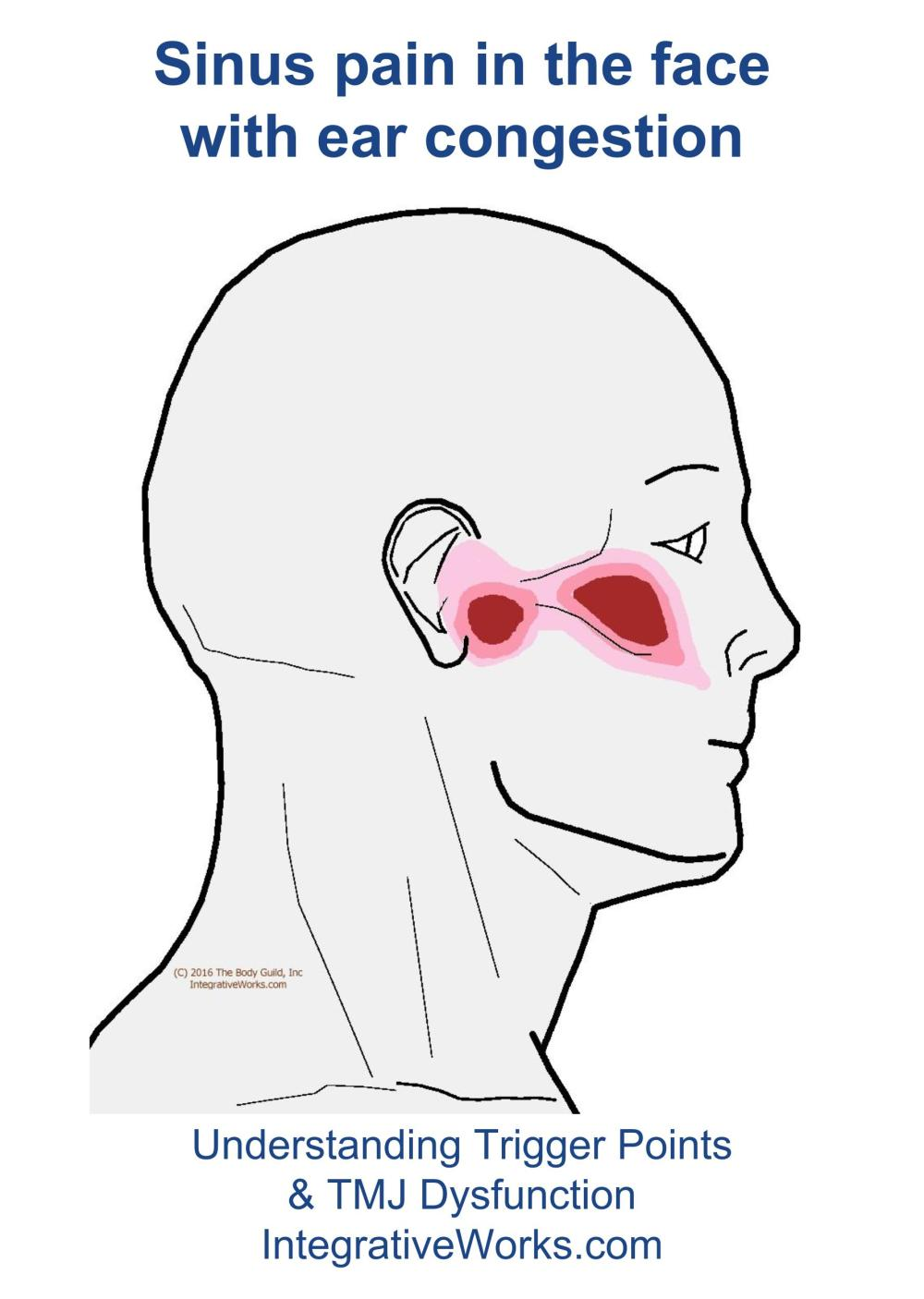 medium resolution of trigger points sinus pain in the face and ear congestion