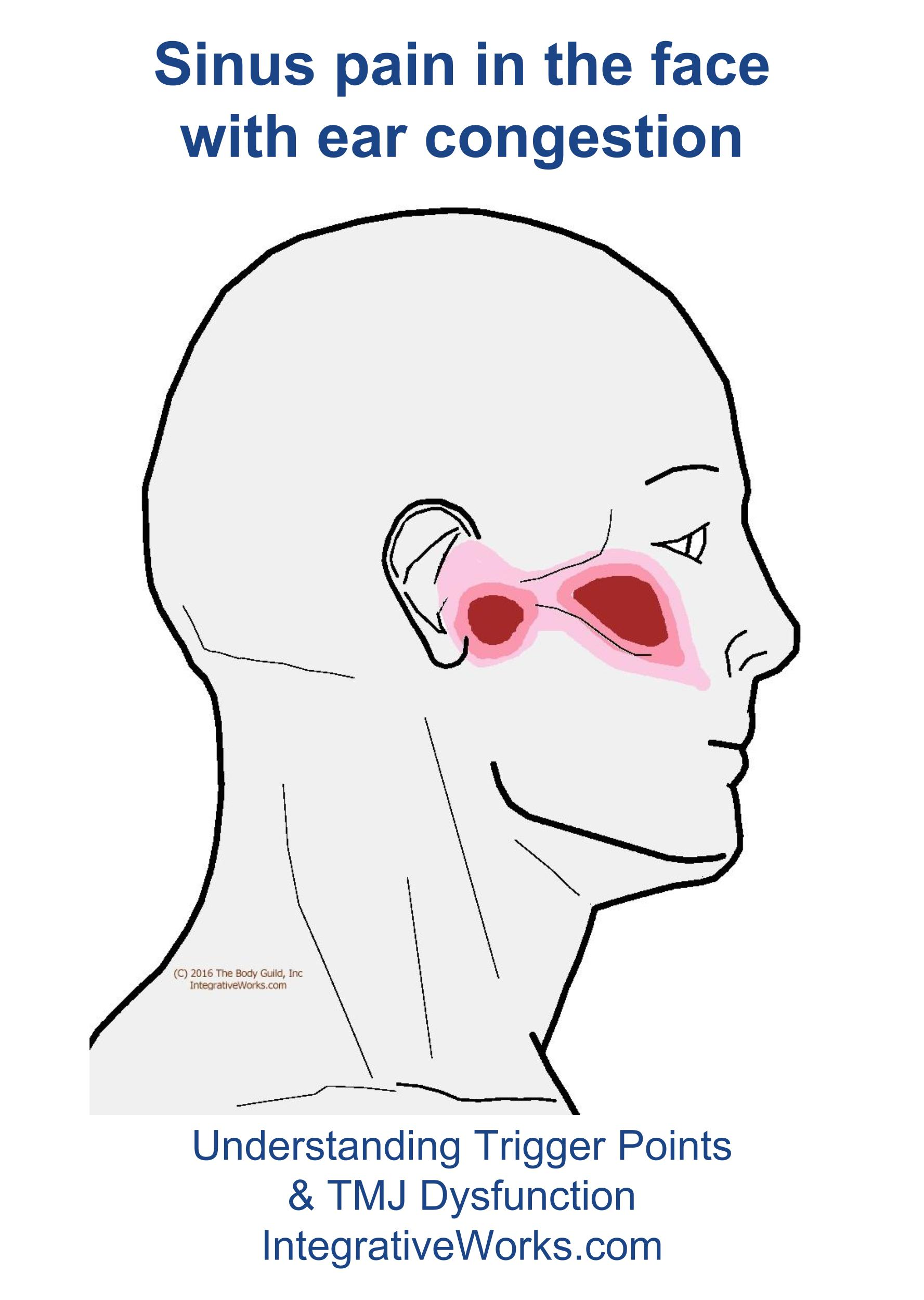 hight resolution of trigger points sinus pain in the face and ear congestion
