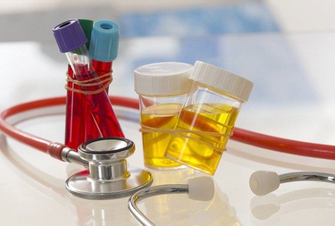 various blood and urine tests